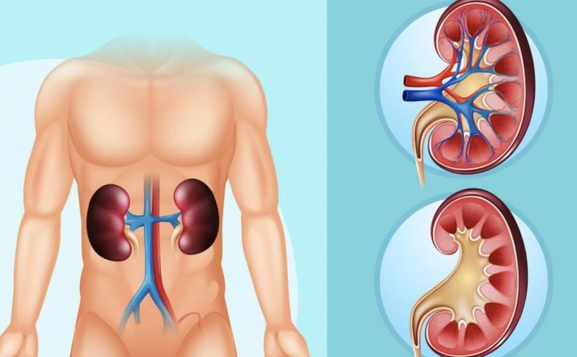 8 sinais que o corpo dá quando você está com pedras nos rins