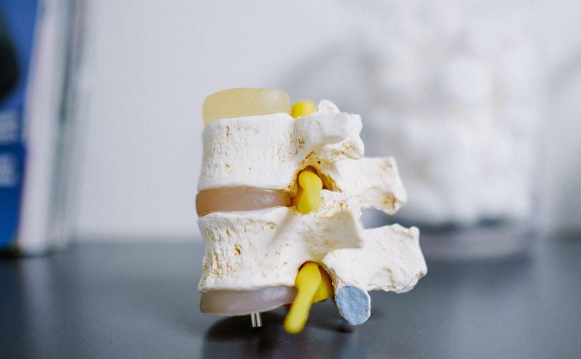 Aqui está o que você deve saber para evitar ter problemas nos ossos